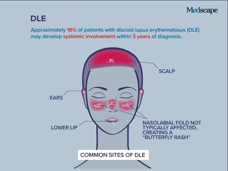 diskoid lupus erythematosus