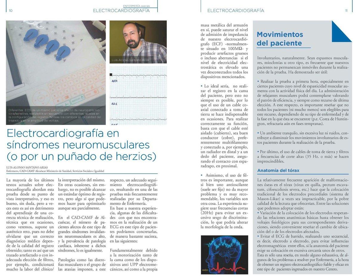 Gran artículo de Luis-Alfonso Santano (CAD-CAMF Alcuéscar) sobre importancia de una correcta técnica en realización de electrocardiografías