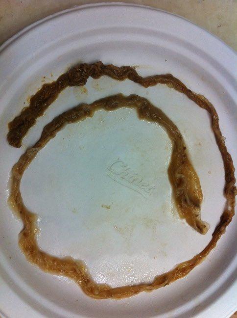 Ropeworm