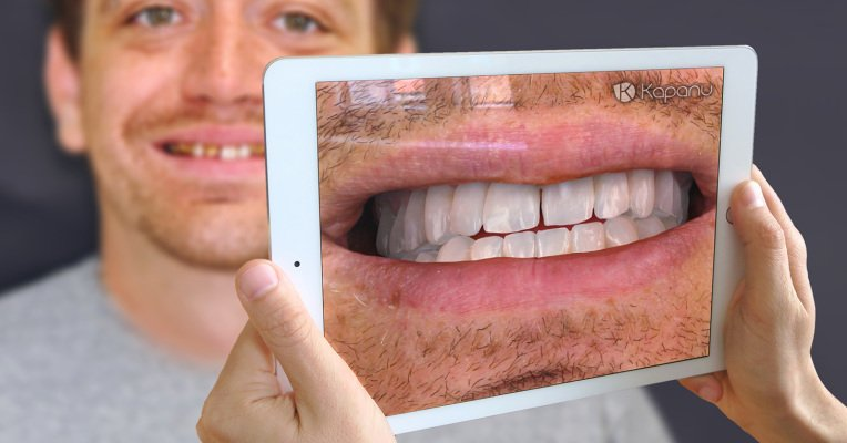 Smile, you're in augmented reality dentistry https://t.co/337mGrMDIf