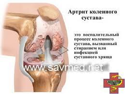 Артроз тазобедренного сустава реферат