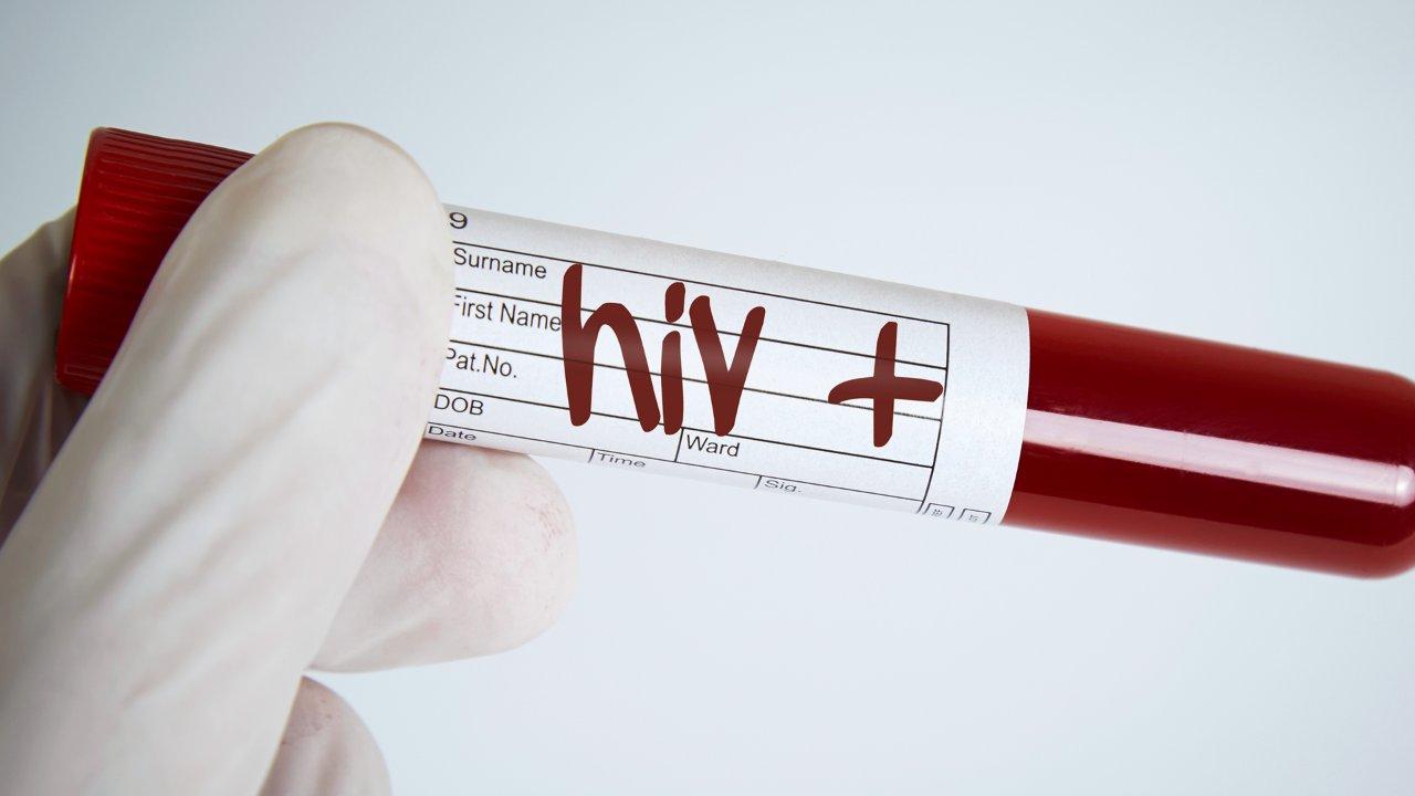 Через сколько проявляется ВИЧ после заражения? Через сколько сдавать кровь на ВИЧ?