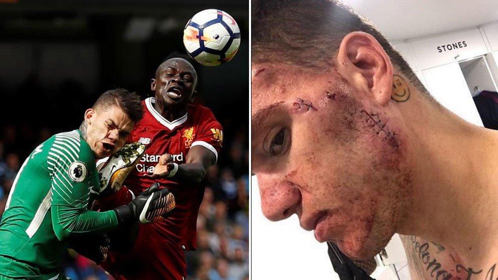 Jugador que lesionó a portero del City recibió castigo de tres fechas