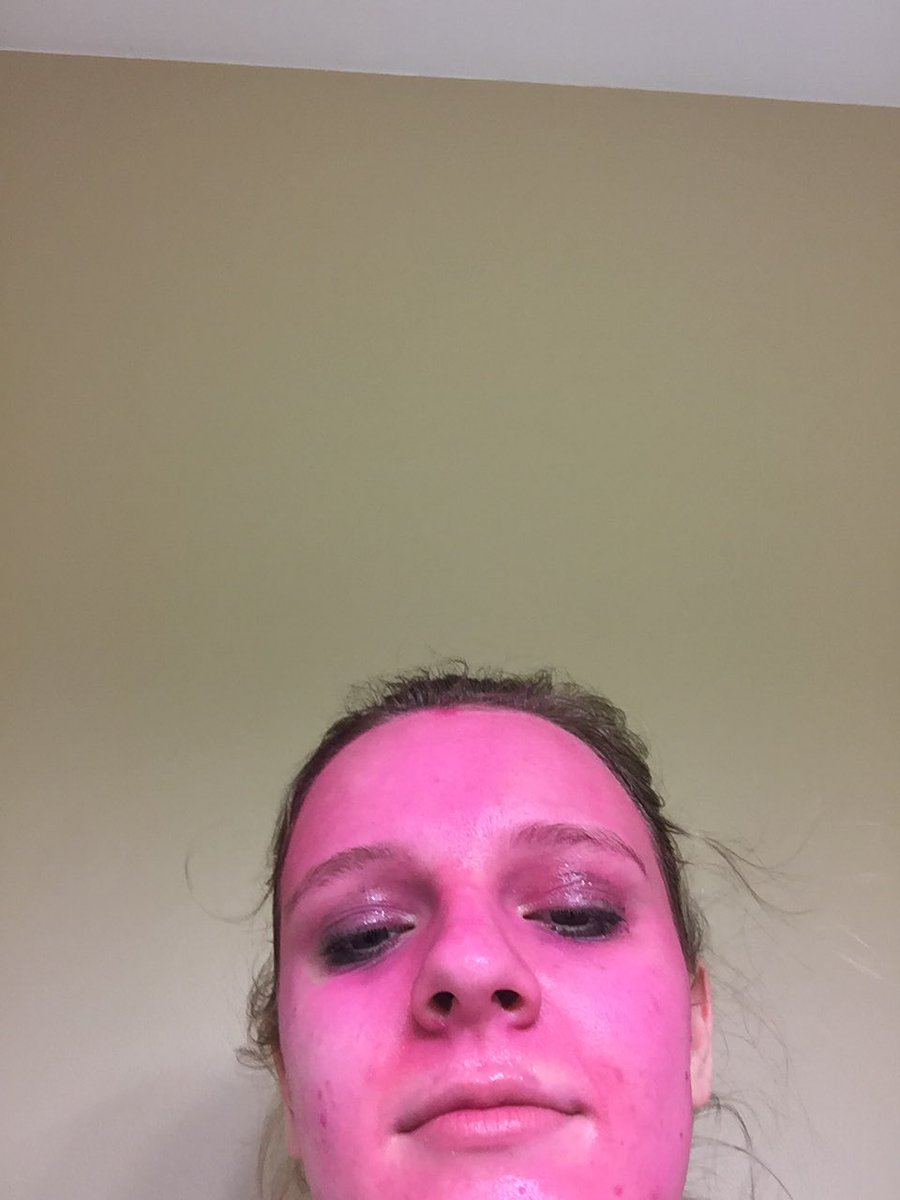Girl accidentally dyes her face pink. She'll see you in court, 'washable' paint.