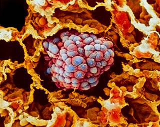 Improving Survival in Resected #NSCLC With Adoptive #Cellular #Immunotherapy @myESMO #ESMO #ESMO2017  http:// ow.ly/VtlL30f7Yy3  &nbsp;  <br>http://pic.twitter.com/t8nRxHaoXJ