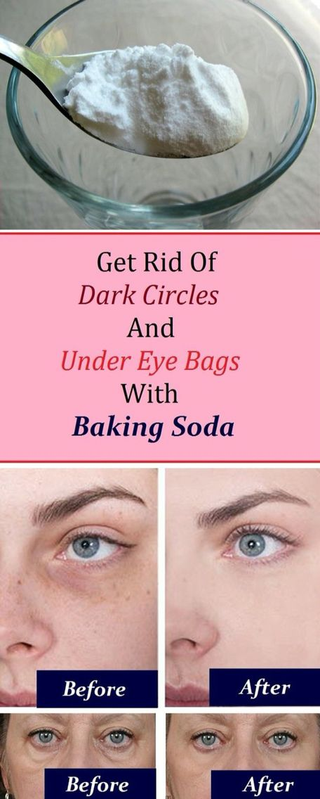 To get rid of dark spots from acne
