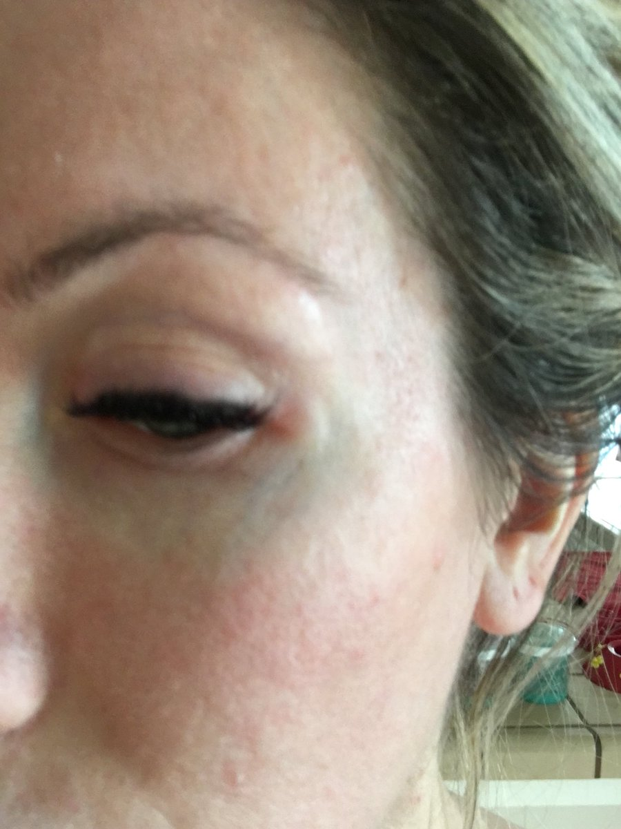 Channon Rose On Twitter Due To An Allergic Reaction On My Eyes