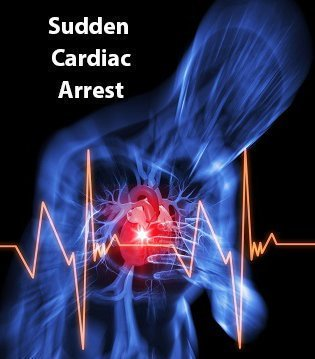 Almost 300,000 people die from sudden #cardiacarrest each year | Do you now #CPR? Can you use an #AED ? Get trained at #RescueOne #FirstAid<br>http://pic.twitter.com/AaBPTHL7jY