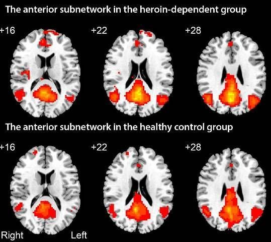 Find out how well participants in #neuroimaging studies reflect general populations you treat in clinical practice.  https:// buff.ly/2juPjsu  &nbsp;  <br>http://pic.twitter.com/mAI9UKWZfA