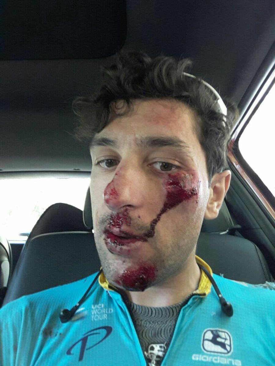 Thumbnail Credit (cyclingpub.com): We have to say a huge thank to our helmets @limar_helmets. This really saved @gatto_oscar today...