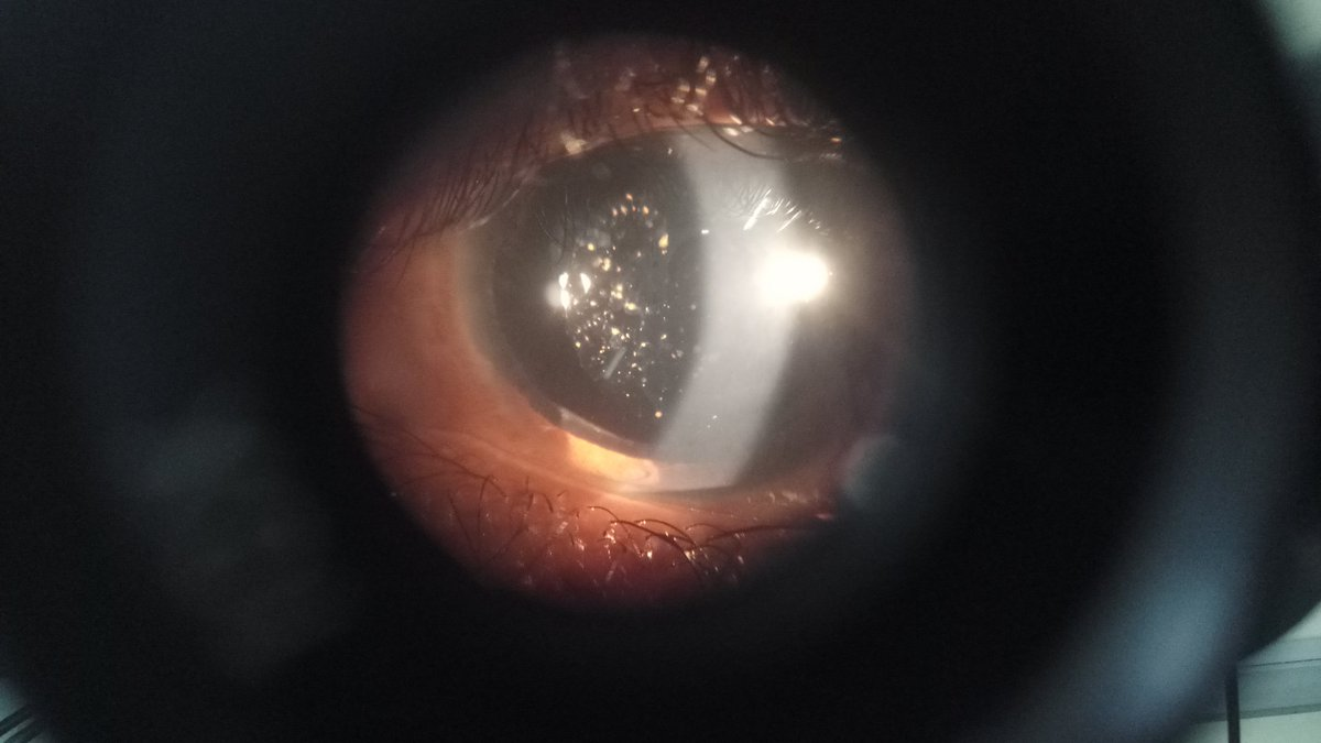 Baby i see stars in your eyes.. No dude it is iris pigmentation ..post traumatic Care #prosthetics  #optometry <br>http://pic.twitter.com/3NrChR8LxV