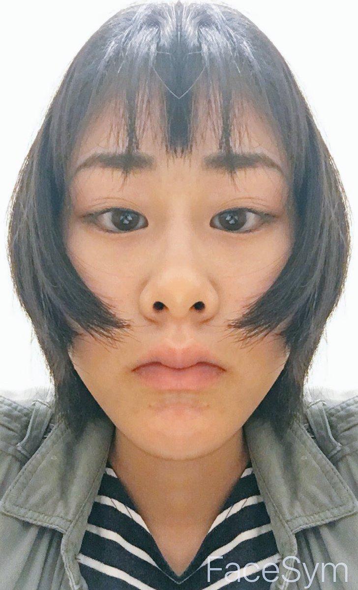 顔面 左右 非対称
