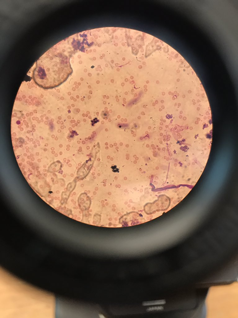 Taking a look down the #microscope at T. brucei among red blood cells!  #scicomm #trypanosoma #phd #parasitology #publicengagement<br>http://pic.twitter.com/hvyDleZp1v