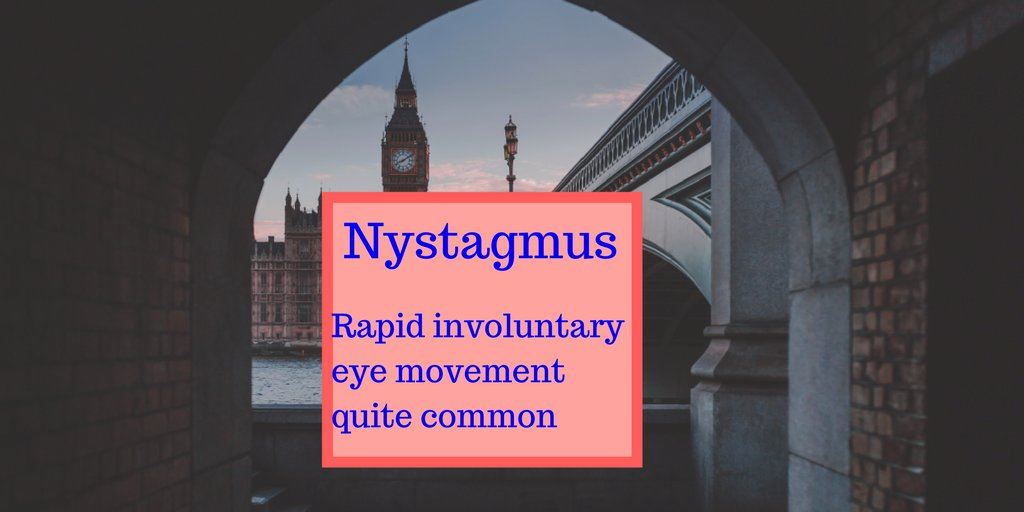 Nystagmus, in general, is not as onerous as it sounds. #Vision #eyesight  http:// dld.bz/fQYgQ  &nbsp;  <br>http://pic.twitter.com/IjMB6gluCW