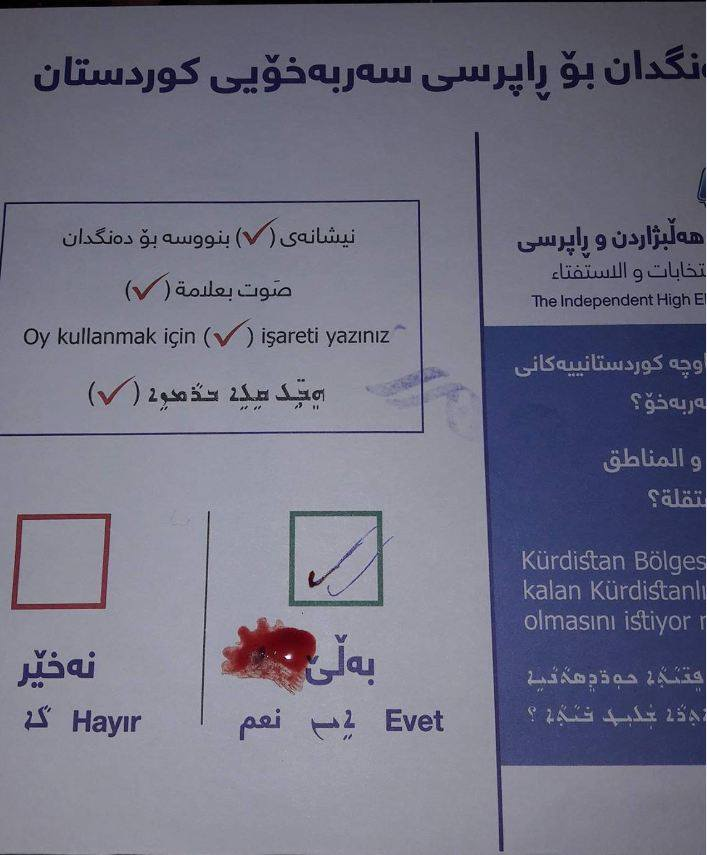 A citizen voted 'Yes' in the #KurdistanReferendum with ink and blood....