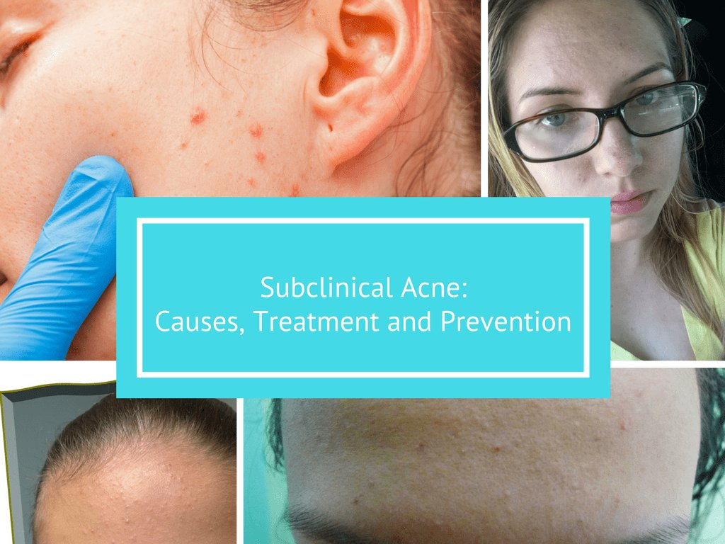 hard pimples causes treatment and more healthline - HD1024×768