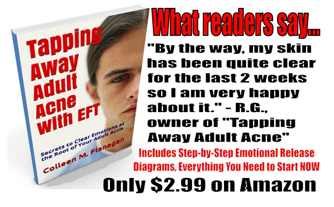 Follow #DIY acupressure scripts, clear stress-triggered #acne   Works for other skin issues too  $2.99  http://www. amazon.com/-/e/B00WOLEZF4  &nbsp;  <br>http://pic.twitter.com/HF5vi9ysSZ