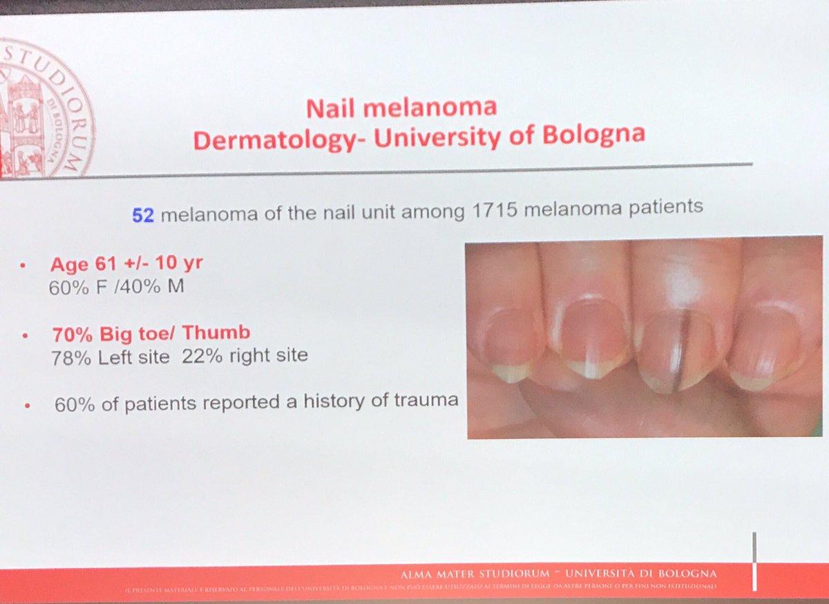 hutchinson sign nail melanoma