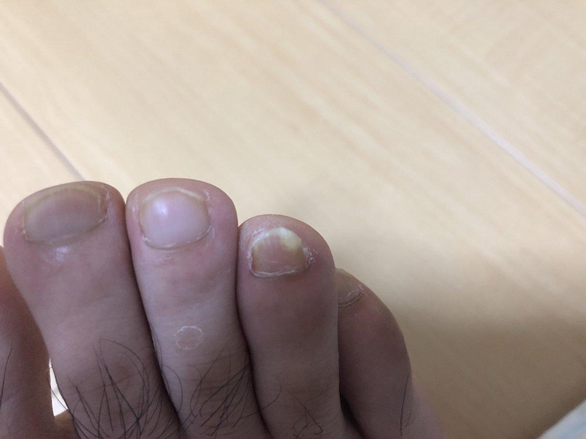 きよ 乾癬日記 On Twitter 足の爪 最近気づいたけど これって