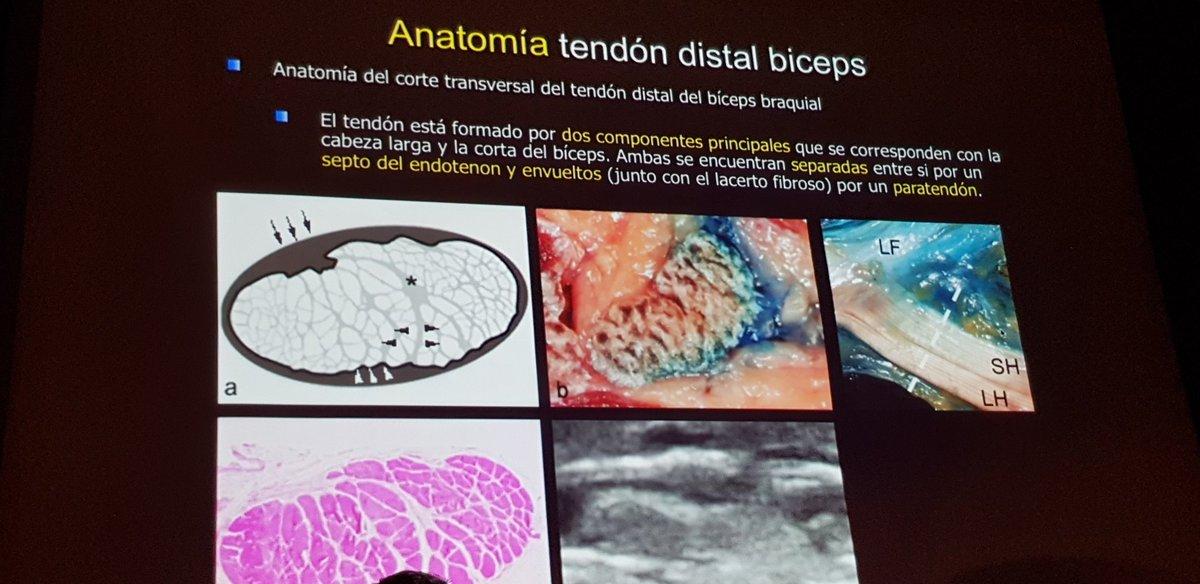 Perfecto Anatomía De Un Kit De Batería Inspiración - Anatomía de Las ...