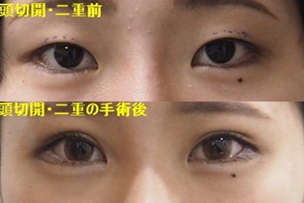 美容 外科 形成 東京