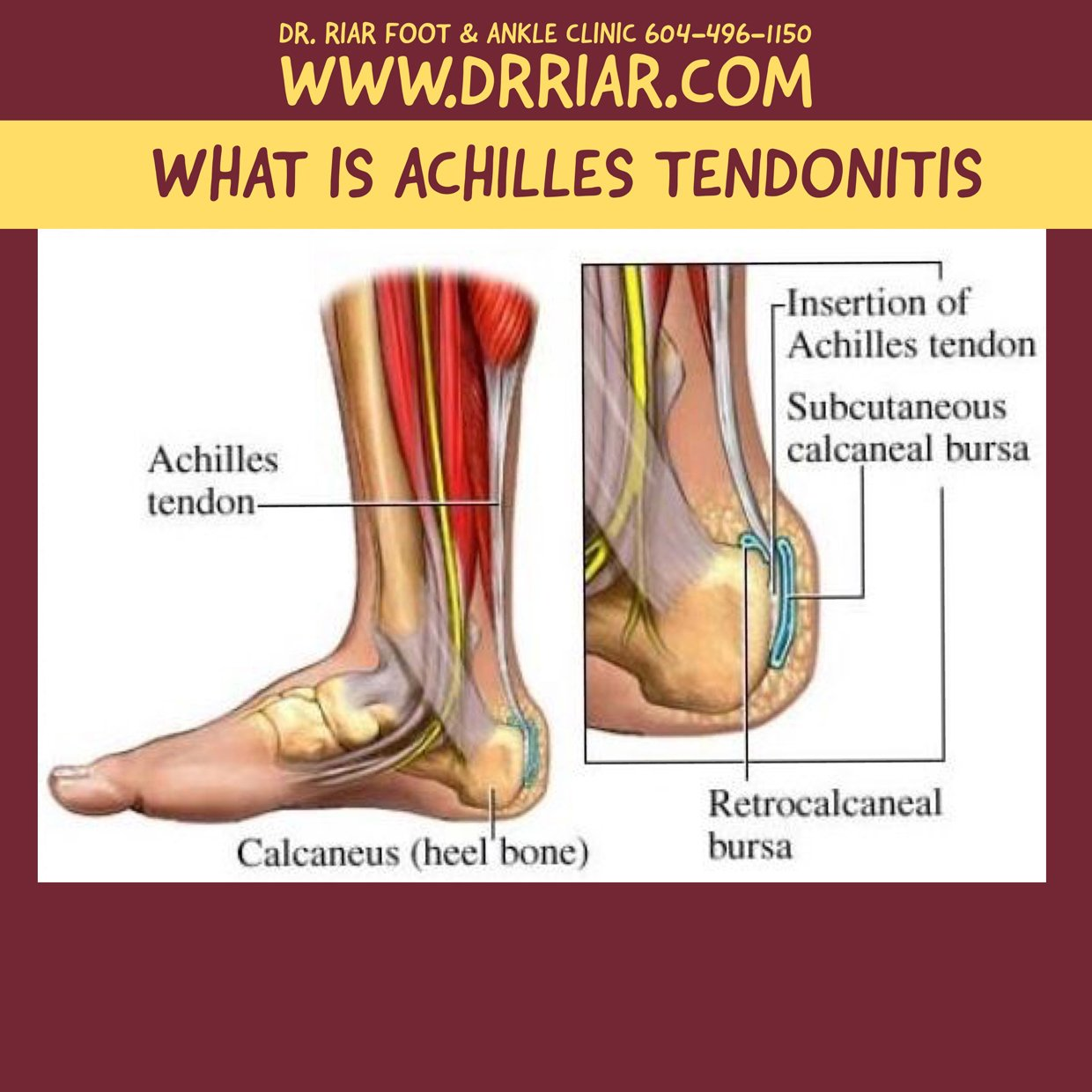 Perfecto Achilles Tendon Anatomy And Physiology Molde - Imágenes de ...