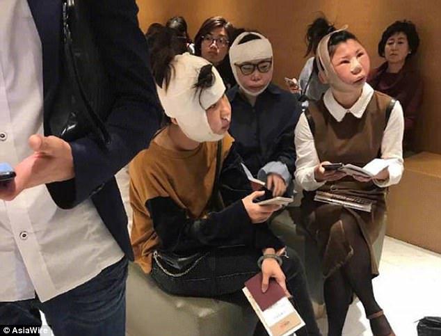 Turis China Ditahan di Bandara Korea Karena Mukanya Aneh Setelah Operasi Plastik