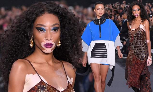 Winnie Harlow steals show in the L&#39;Oreal Paris show in PFW #winnie #harlow #steals #oreal #paris  http:// dlvr.it/PtSH0Z  &nbsp;  <br>http://pic.twitter.com/mOjWjSyqQp