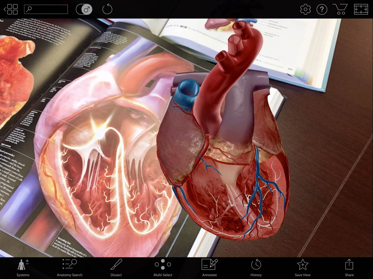 Visible Body On Twitter Use Augmentedreality To Ensure That Your