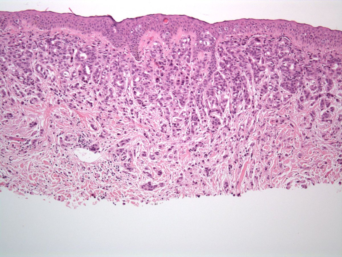 Metastatic prostate cancer in skin (and it&#39;s epidermotropic). Very rare. PSA+. Pics: @SteveBillingsMD #Pathology #dermpath #dermatology<br>http://pic.twitter.com/uUSQcINYDh