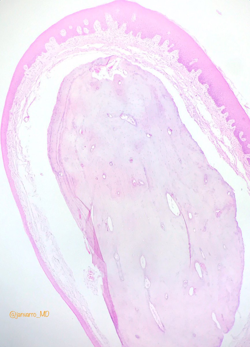 Osseous choristoma. Sessile mass on the posterior dorsum of the tongue on a 47yo female. #OralPath #ENTPath #Pathology <br>http://pic.twitter.com/OT94dR9TW5