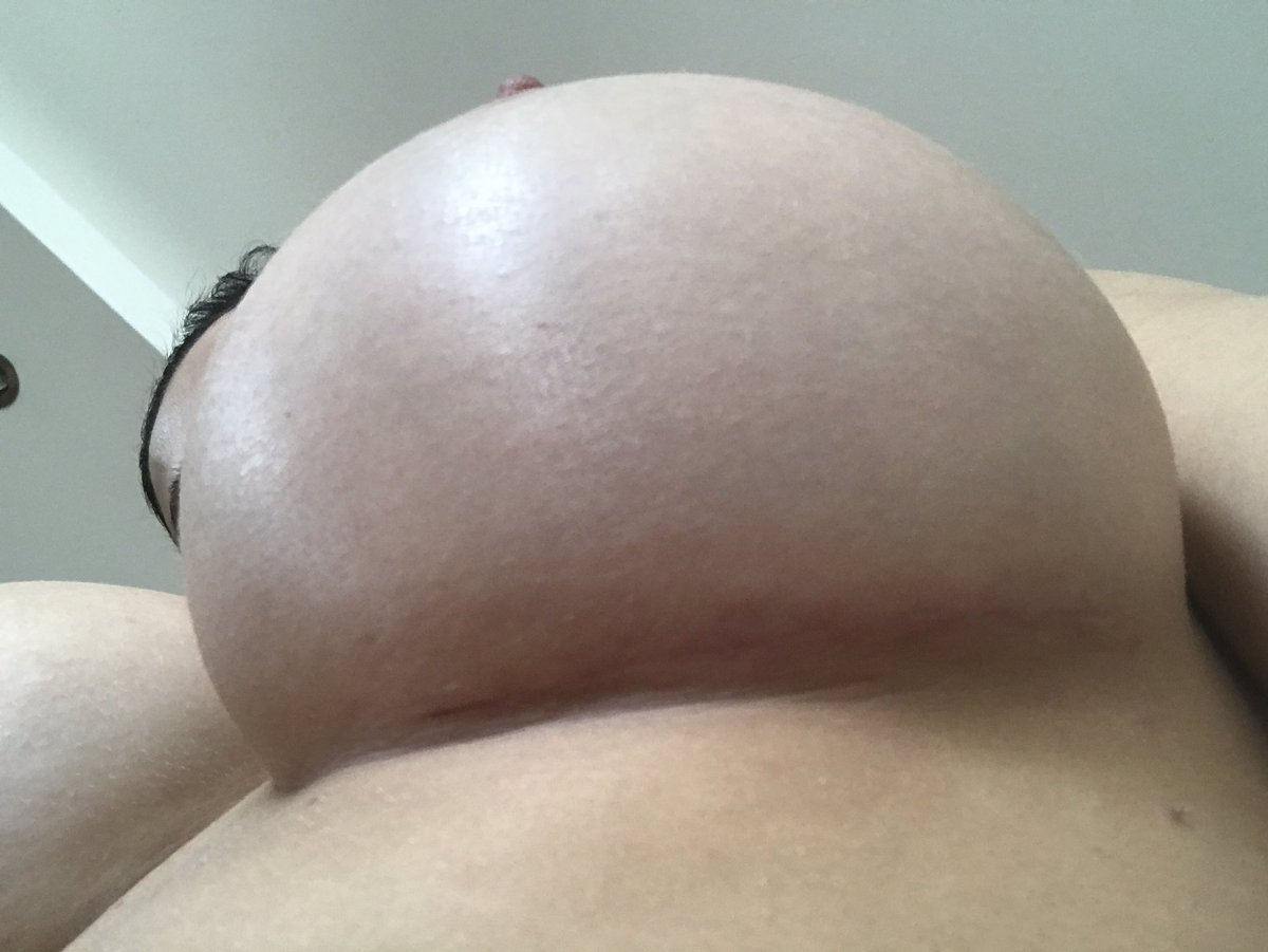 Aletta Ocean-pornstar  - My surgeon i twitter @ALETTAOCEANXXXX