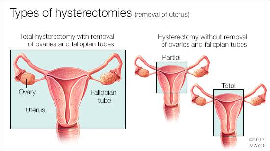 #WomensWellness: The #hysterectomy decision.  http:// mayocl.in/2yh0mJs  &nbsp;   @WHMayoClinic<br>http://pic.twitter.com/c9fHfqXsMw