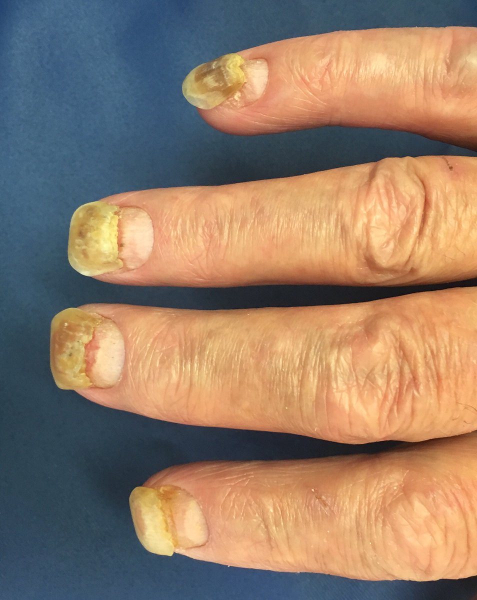 Диета псориаз ногтей