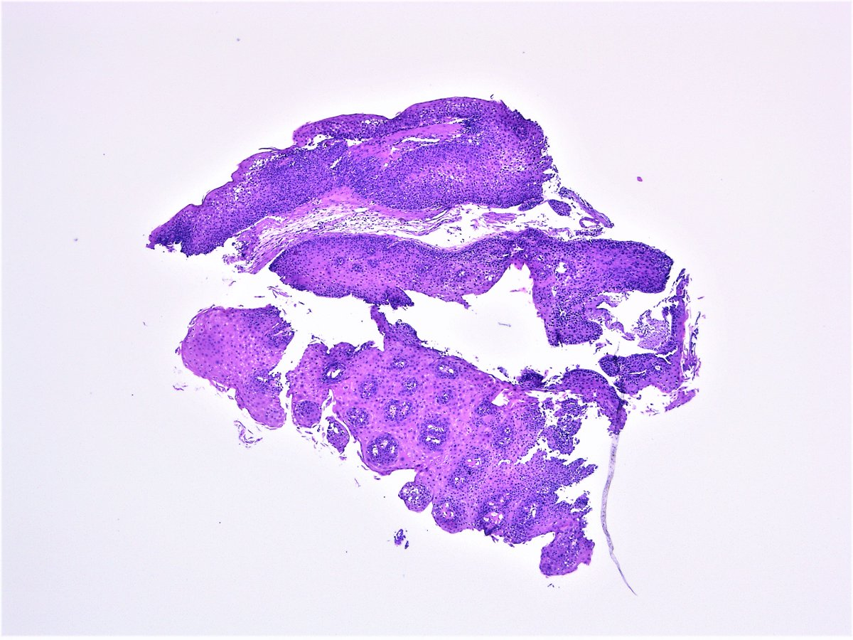 squamous cell carcinoma in situ pathology