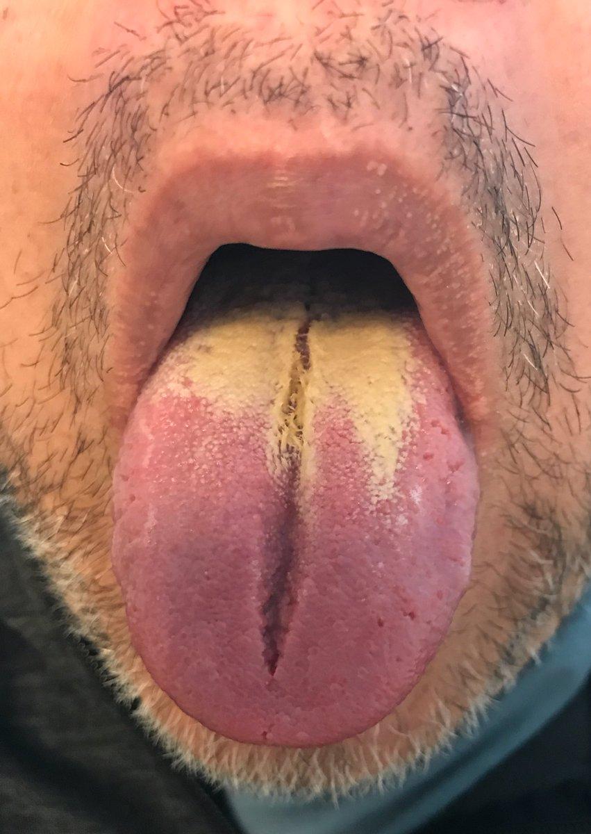 phentermine cause dry mouth