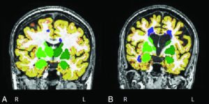 Editor&#39;s Choice: Hippocampal and Deep Gray Matter Nuclei Atrophy Is ... -  http:// bit.ly/2ggSRKe  &nbsp;   #NeuroRad <br>http://pic.twitter.com/KbVF9DyiTE