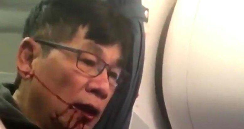 Two officers fired over violent assault of United passenger David Dao https://t.co/e7CaBNdKqM