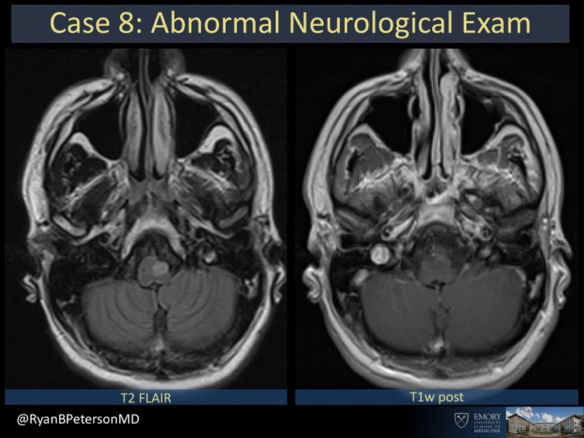 Emory Radiology COTD. Case #8.  THIS GOES OUT TO MY MENTOR @markemullins. ONE OF HIS FAVORITE DX. Abnormal neurological exam.  Look in mouth and see…gif Submit answers to  http:// bit.ly/EmoryCOTD  &nbsp;   Answer will be posted as reply to this post. #FOAMRad #RadRes #FOAMed #EmoryRadCOTD<br>http://pic.twitter.com/cyU6gwGge8