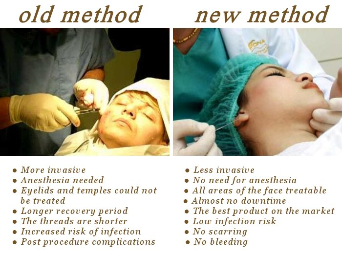 no bleeding, scarring or general anesthetic. #NewFace for 5 years. #GoldThreadLift #FaceLift  http:// fb.me/124dS3Hob  &nbsp;  <br>http://pic.twitter.com/9geE9rwy6V