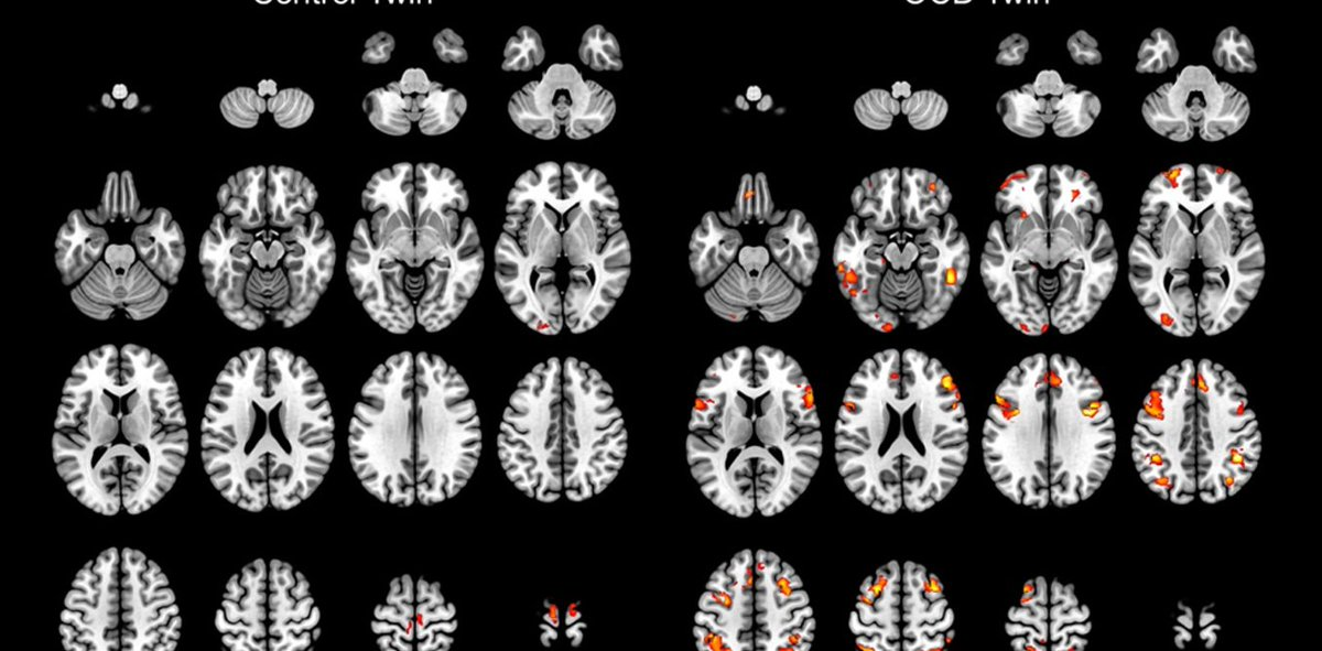 What does a mental illness look like in the brain? See the MRI on the right, below #mentalhealth #psychiatry  http:// bit.ly/2l7QoHx  &nbsp;  <br>http://pic.twitter.com/MKbbWHfgJE