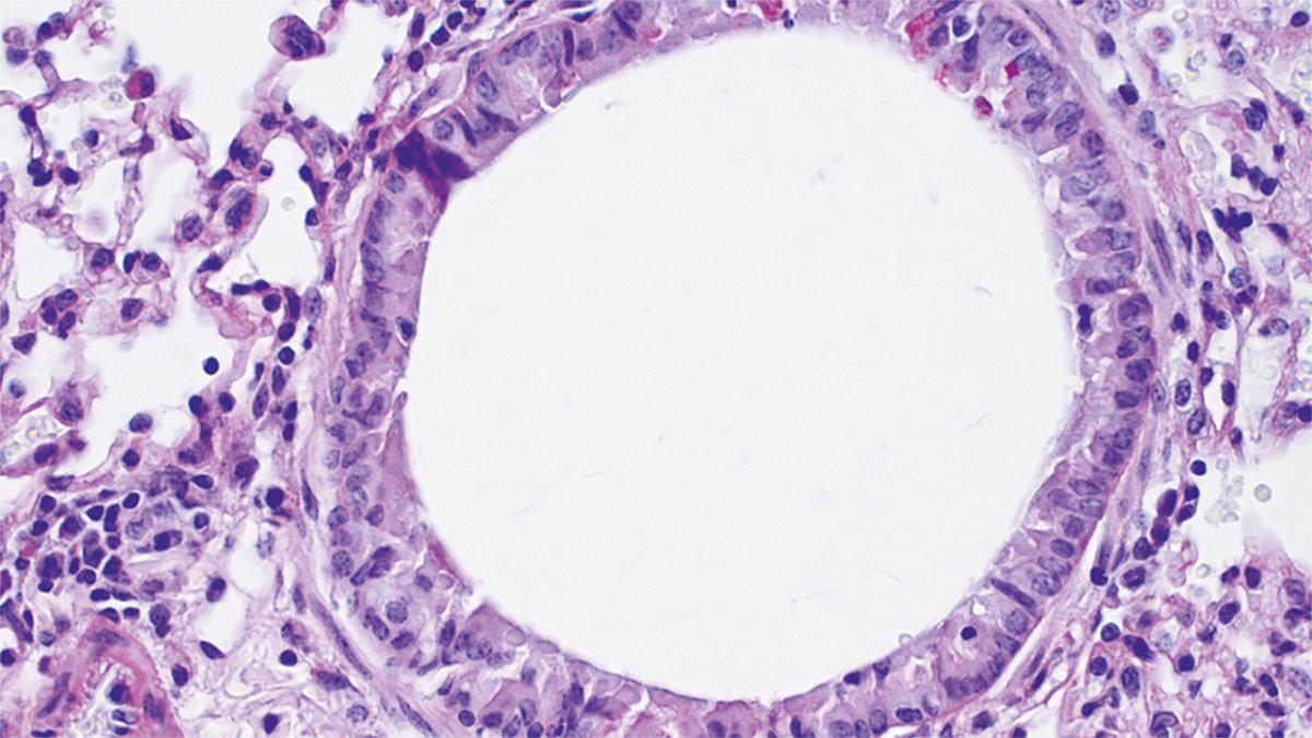 #PressRelease A gammaherpesvirus infection can protect against allergic asthma @UniversiteLiege @NatImmunol  http:// ow.ly/FHiw30g1OuA  &nbsp;  <br>http://pic.twitter.com/pvg6ZaiTbe