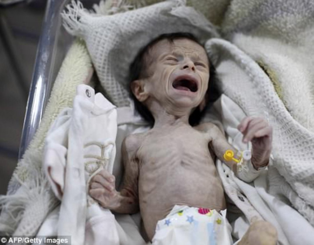 Horrific pics purportedly of malnourished kids in rebel-controlled E. #Ghouta which is besieged by the regime #Syria via @AFP @GettyImages<br>http://pic.twitter.com/TLJtp8AsLG