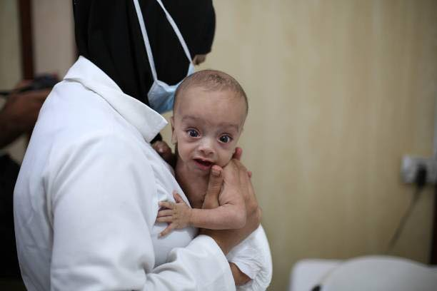 Good morning world ... in #Syria children continue to suffer from malnutrition ... #Ghouta<br>http://pic.twitter.com/KBfaNHzbiV