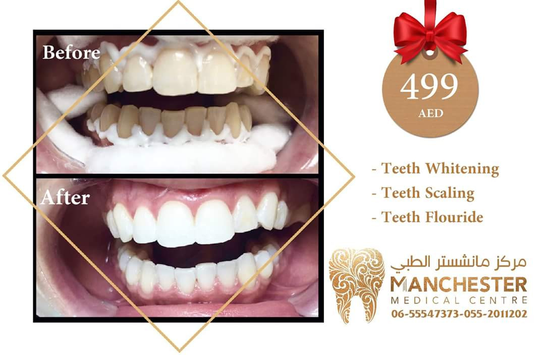 Get our special offer Whitening + Scaling + Fluoride teeth at 499 AED   Booking 065547373- 0552011202   # #teeth #heathy #Veneer #Orthodontic #Scaling #Polishing #filling #smile#me #happy #manchester_medical_center #Sharjah #dxb #UAE<br>http://pic.twitter.com/wwJqKEgZRX