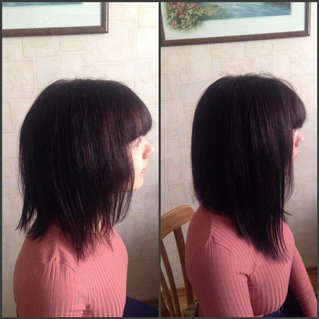 богдановская, несколько наращивание височной зоны фото до и после фотографий