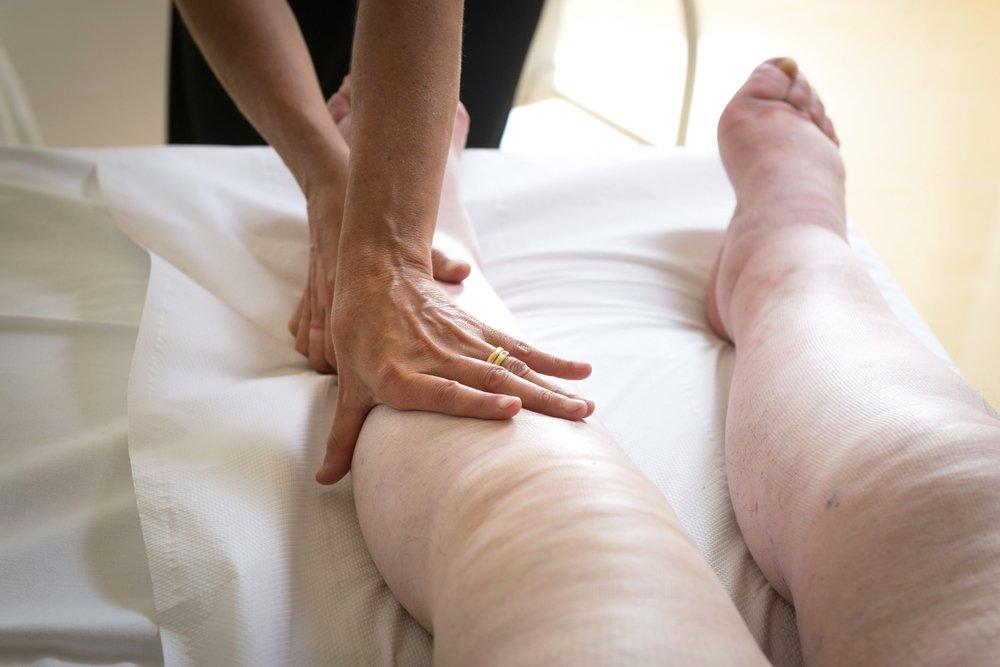 Resultado de imagen para лимфостаз ноги