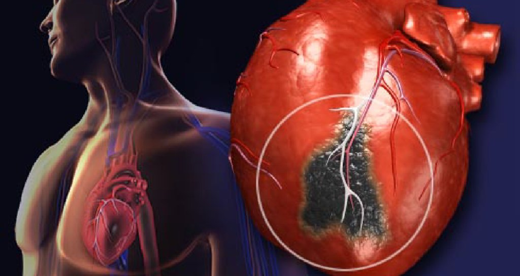 Webmd On Twitter Heart Attack Symptoms Can Look And Feel Different