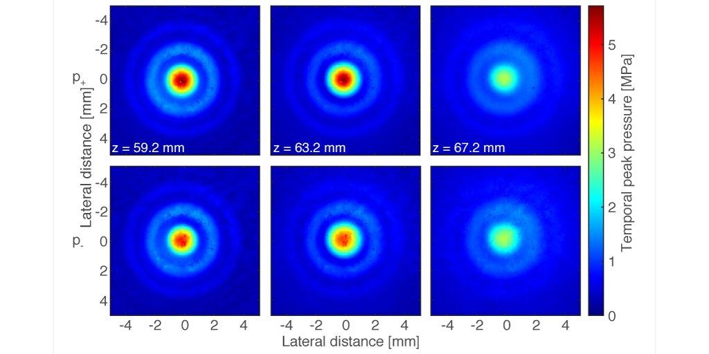 New Paper: Rapid spatial mapping of HIFU fields using a planar Fabry-Pérot Sensor https://t.co/7QYXXEm6oS
