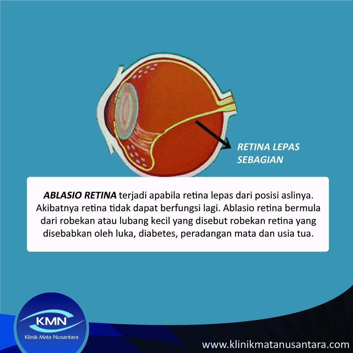 klinik mata dan diabetes nusantara